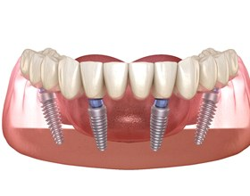 Illustration of All-on-4 dental implants in lower arch
