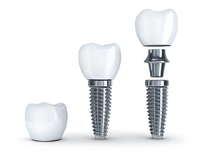 dental implant post, crown, and abutment