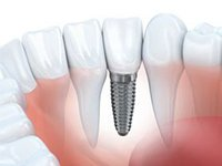 single dental implant post in the jaw