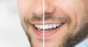 Before and after teeth whitening in Boca Raton