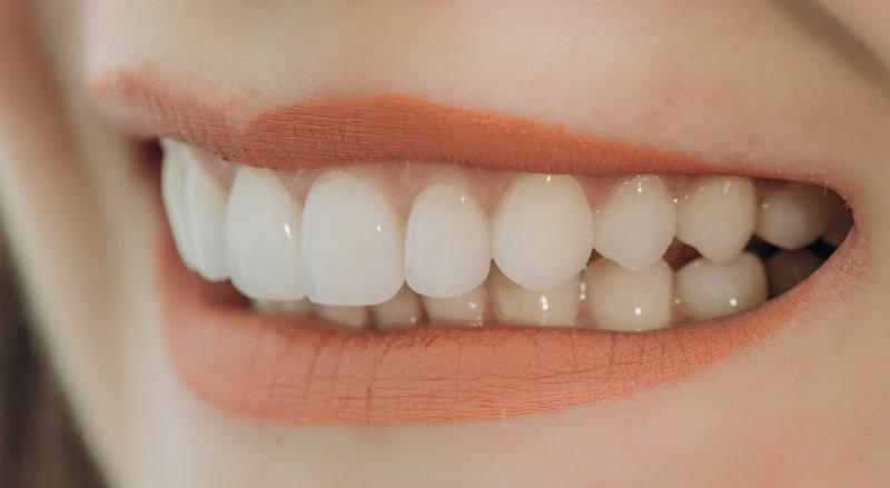 Woman with dental veneers in Boca Raton