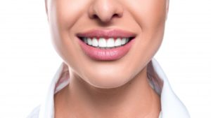 Woman's beautiful smile after veneers process by cosmetic dentist